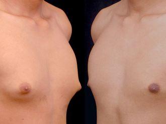 Cirugía ginecomastia-613602