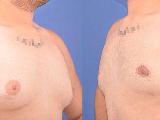 Cirugía ginecomastia-613708