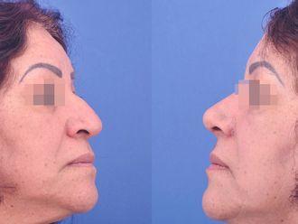 Cirugía plástica-613711