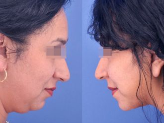Cirugía de papada-613719