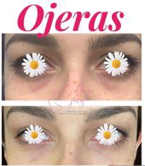 Eliminación de ojeras - Dra. Jacy Collazo Daza