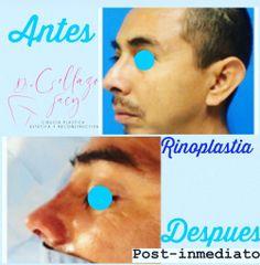 Rinoplastia - Dra. Jacy Collazo Daza