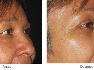 Rejuvenecimiento facial-224962