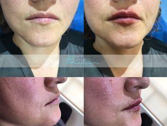 Aumento de labios-632325