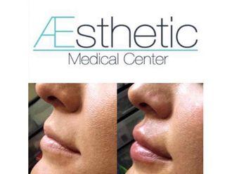 Aumento de labios - 641929