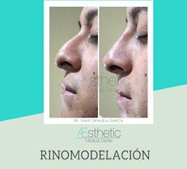 Rinomodelación - Dr. Sinué Orihuela García