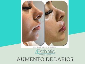 Aumento de labios-689623