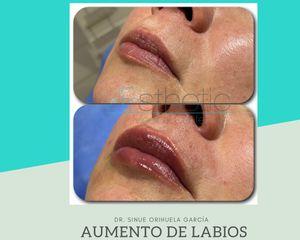 Aumento de labios - Dr. Sinué Orihuela García