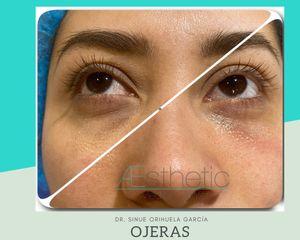 Ojeras antes/después - Dr. Sinué Orihuela García