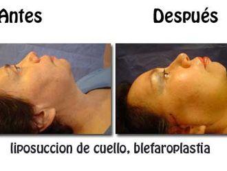 Blefaroplastia-275263