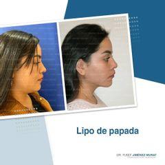 Liposucción de papada - Dr. Yusef Jiménez Murat