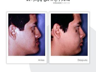 Cirugía maxilofacial-737489