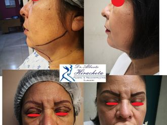 Cirugía de papada-634311