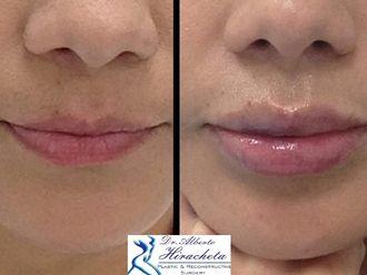 Aumento de labios-637524