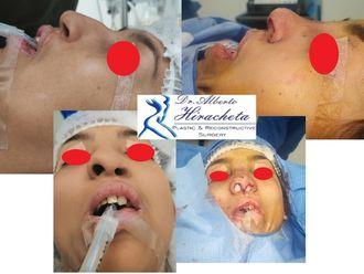 Cirugía plástica reconstructiva - 637525