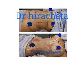 liposuccion mas pexia