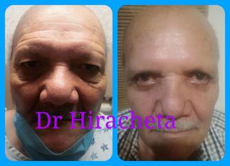 Dr. Alberto Hiracheta