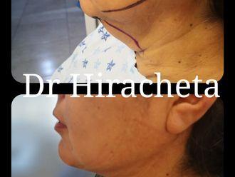 Cirugía de papada - 793416