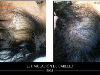 Trasplante de cabello - 648165