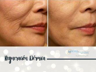 Rejuvenecimiento facial - 641453