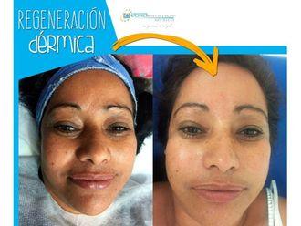 Rejuvenecimiento facial - 641454