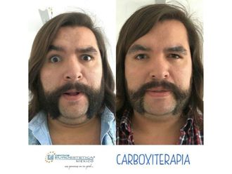 Carboxiterapia - 641455
