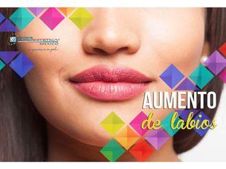 Aumento de labios-641459