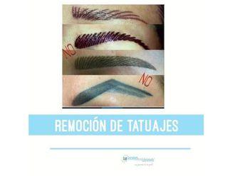 Eliminación de tatuajes-641464