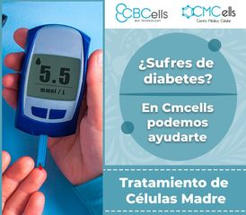 CMCells