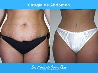 Abdominoplastia - 637976