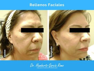 Rejuvenecimiento facial-638268