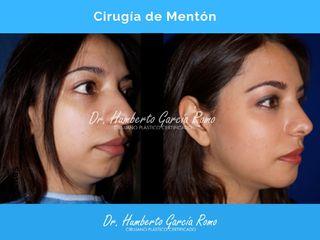 Cirugía de Menton