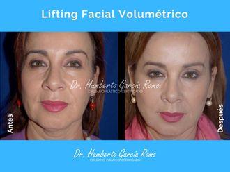 Rejuvenecimiento facial - 645665