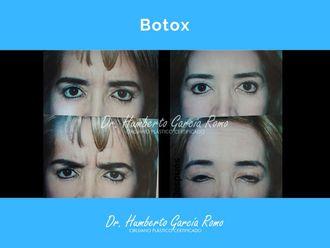 Bótox - 646206