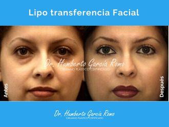 Tratamientos de belleza-650621