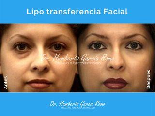 Lipo transferencia Facial