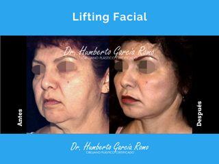 Dr. Jorge Humberto García Romo - Lifting facial