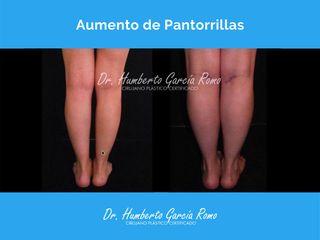Aumento de Pantorrilla - Dr. Jorge Humberto García Romo