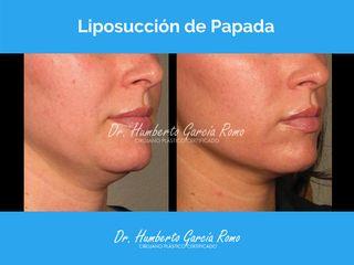 Liposucción de Papada - Dr. Jorge Humberto García Romo
