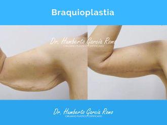 Braquioplastia - 688323