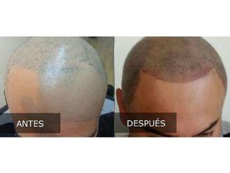 Trasplante de cabello - 606499