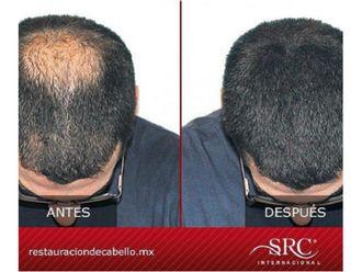 Trasplante de cabello - 606500