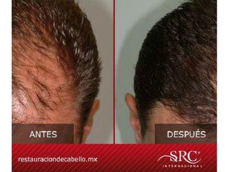 Trasplante de cabello - 606503