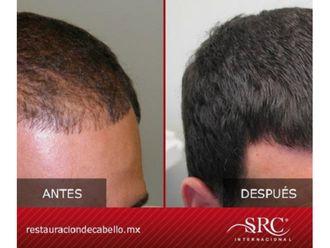 Trasplante de cabello - 606505