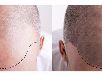 Trasplante de cabello - 606506