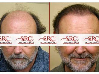 Trasplante de cabello - 606508