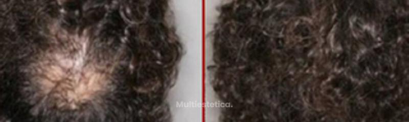 12 micropigmentación capilar