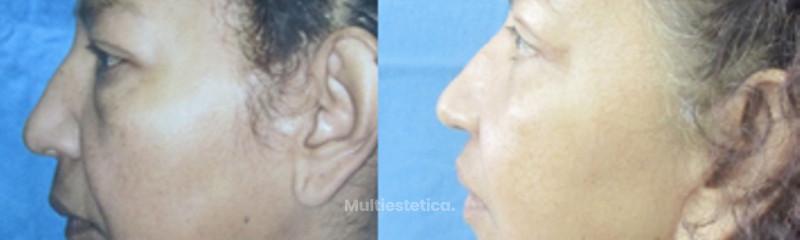 Ridectomía (lifting facial)