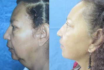 Ridectomía (lifting facial)