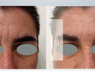 Toxina botulínica y rellenos faciales